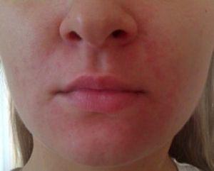 Покраснение вокруг носа – причины, фото и как избавиться?