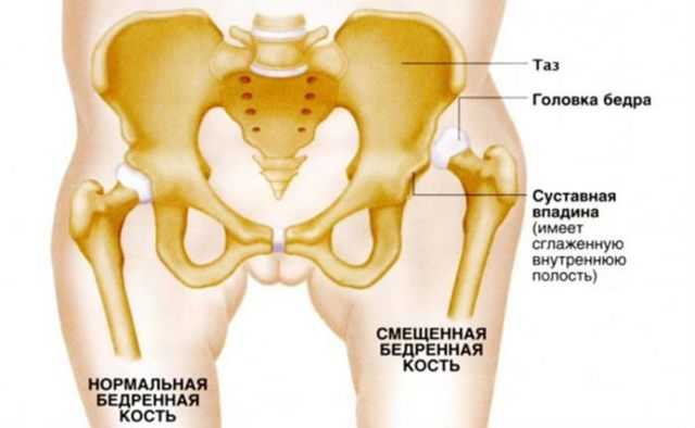 боль в левом боку где тазовая кость поюзаем)