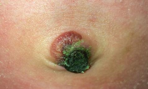 Инфекция пупка – причины, фото, лечение у взрослых и младенцев