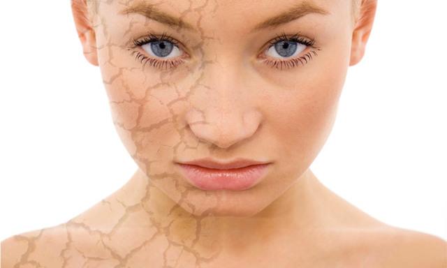 Народные средства для сухой кожи
