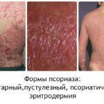 Сыпь на ягодицах - причины, фото и лечение