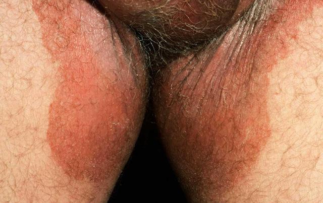 Зуд мошонки у мужчин – причины и лечение в домашних условиях