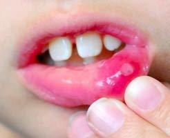 Прикусывание щеки – причины и что делать?
