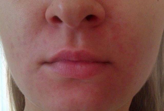 Сухая кожа вокруг рта и носа – причины, фото, домашние средства