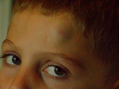 На лбу под кожей появилась шишка (комок) – причины, фото, лечение