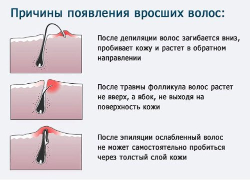 Вросшие волосы в зоне бикини – причины, как избавиться и лечить