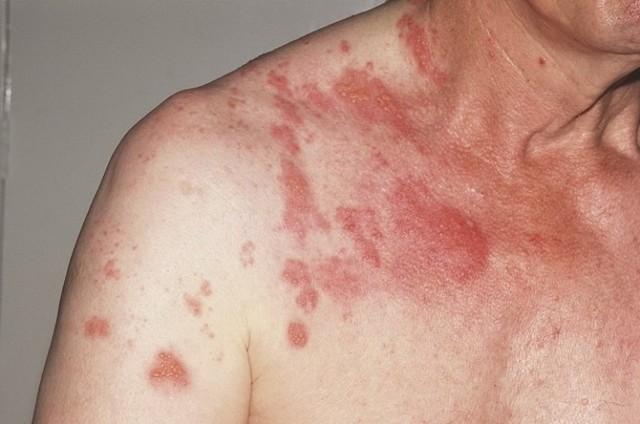 Болит в правом боку под ребрами спереди – причины и лечение