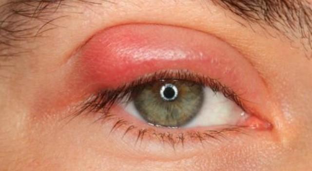 Шишка, шарик или бугорок на глазу – причины, фото и что делать