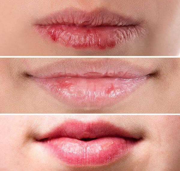 Облазит, шелушится кожа на губах – причины и что делать