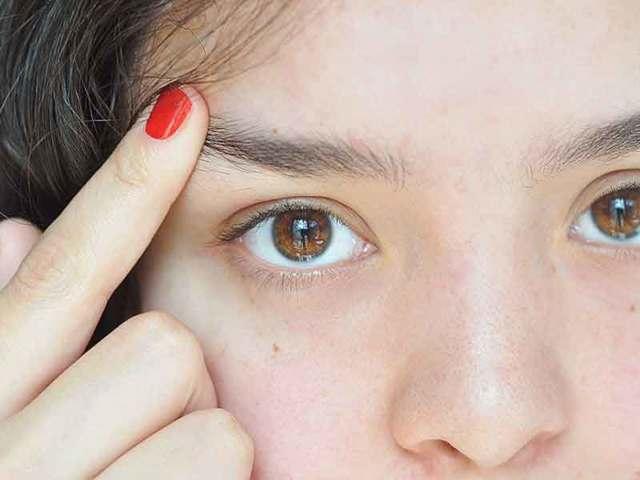 Выпадают брови – причины, фото и что делать?