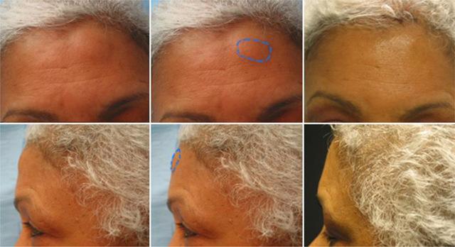 Шишка или шарик на голове под кожей – причины, фото, лечение