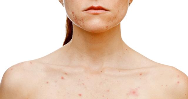 Сыпь на груди и под ней – причины, виды, фото, лечение