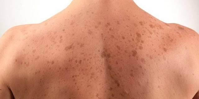 Виды и причины темных пятен на коже