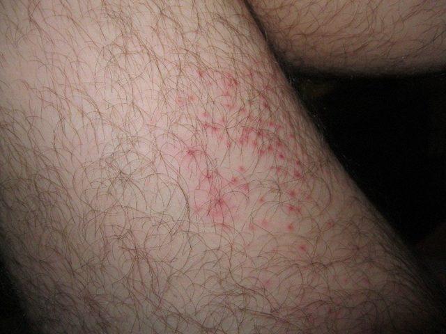 Сыпь на внутренней стороне бедра – причины, лечение