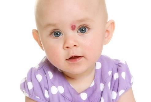 Твердый шарик или шишка под кожей – причины, фото лечение