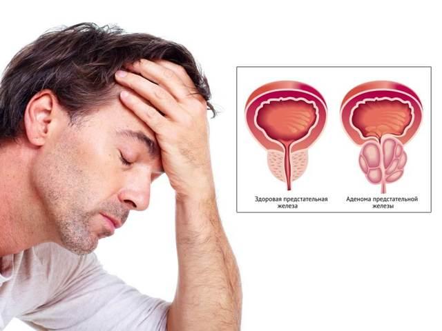Кровь во время или после полового акта у мужчины или женщины