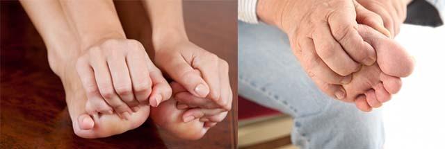 Распух большой палец на ноге – причины, фото, лечение
