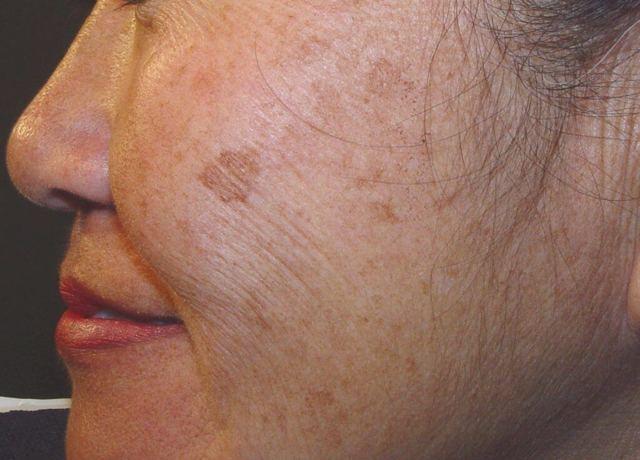 Возрастные пятна на лице – причины, лечение и домашние средства