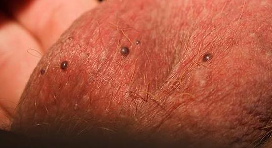 Черные или красные точки на мошонке – причины и как лечить