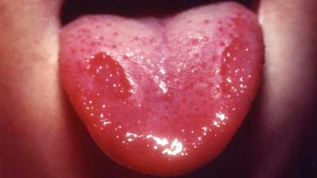 Увеличенные сосочки на языке – фото, причины и лечение