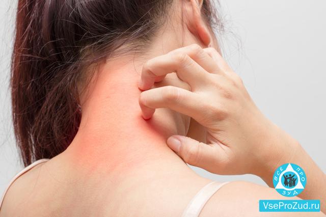 Зуд кожи тела – причины и лечение
