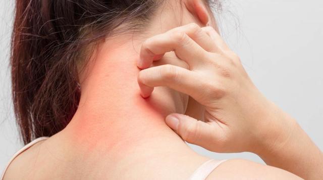 Сыпь на шее – причины, виды, фото, лечение