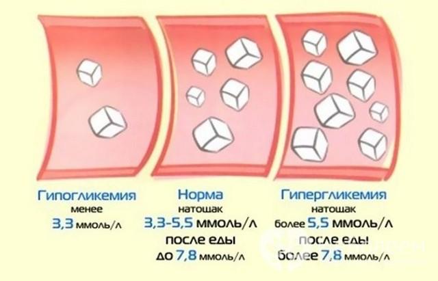 Последствия высокого уровня сахара в крови