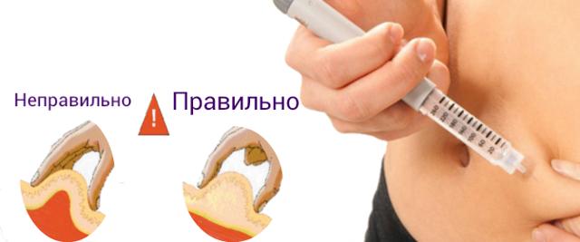 Приступы при сахарном диабете: симптомы, что делать, первая помощь, как снять, причины