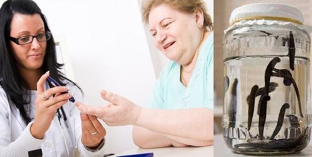 Гирудотерапия при диабете сахарном 2 типа: польза, способы и правила