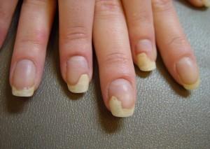 Грибок ногтей чем лечить при сахарном диабете