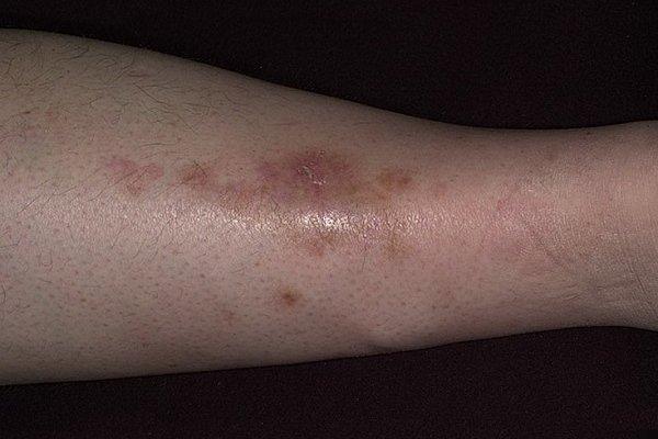 Сыпь при диабете сахарному детей взрослых: на ногах. теле, животе, фото, лечение, причины
