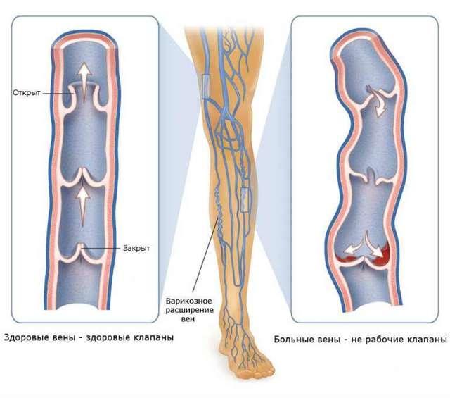 Ретикулярный варикоз нижних конечностей: лечение, фото, признаки, мкб