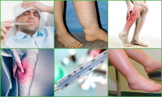 Тромбофлебит нижних конечностей: симптомы, причины, виды (хронический, острый, поверхностных и глубоких вен), лечение (народное, хирургия, препараты)