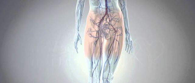 Варикоз малого таза симптомы лечение