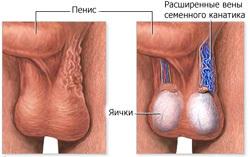 Снижение потенции при варикоцеле