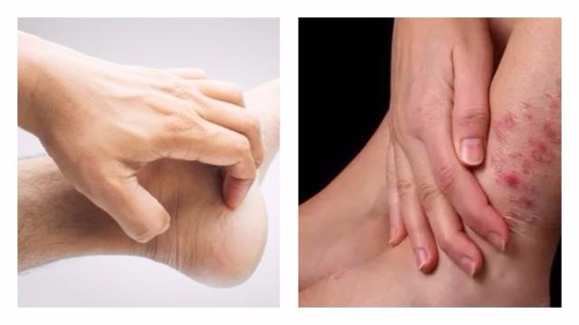 Чешется при диабете сахарном (кожный зуд): тело, ноги, руки, спина, голова, половые органы, уши - может ли, что делать, почему