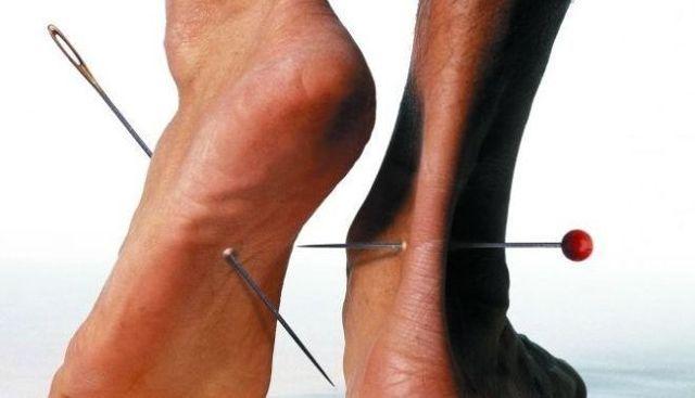 гангрена ноги фото начальная стадия