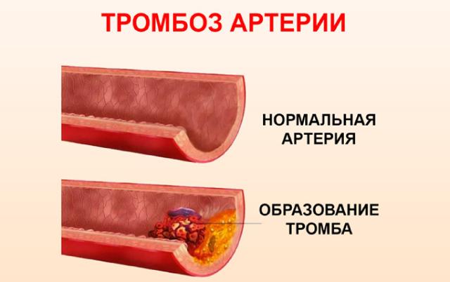 ГЕПАТРОМБИН ИЛИ ГЕПАТРОМБИН Г: что лучше и в чем разница (отличие составов, отзывы врачей)