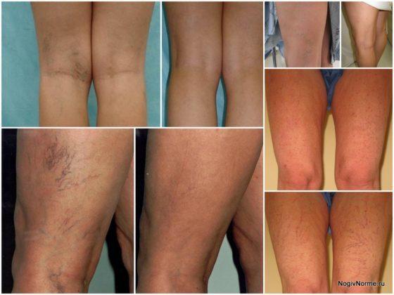 Лечение варикоза вен на ногах лазером