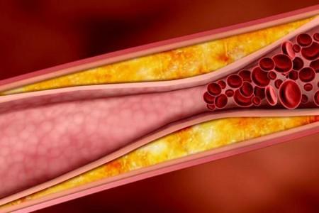 Лавровый лист при диабете сахарном 2 типа: как принимать отвар, настойку для лечения, как приготовить, чем полезен