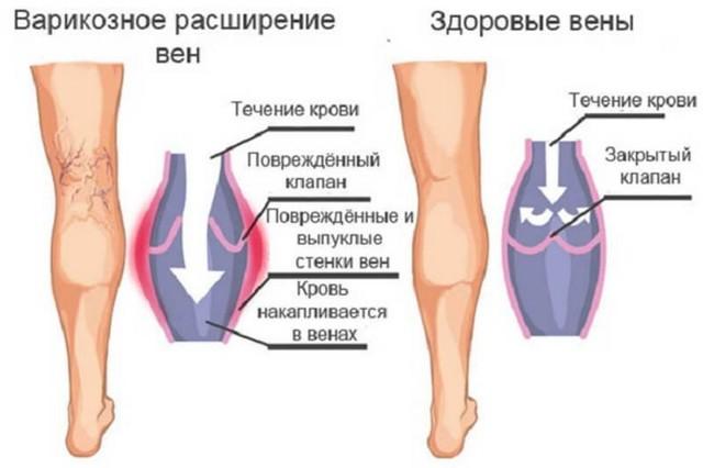 Стадии (степени) варикоза (начальная, 1, 2, 3,4): лечение, как выглядит