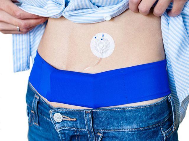 Инсулиновая помпа: цена, как получить бесплатно, расходные материалы, установка, отзывы диабетиков, лучшие модели