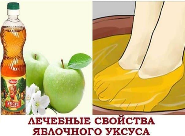 Яблочный уксус при варикозе: как пользоваться (ванночки, прием внутрь, компресс, обертывание, наружное применение), народные рецепты