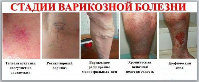 Боли при варикозе нижних конечностей (после операции, при беременности): чем объяснить и как снять