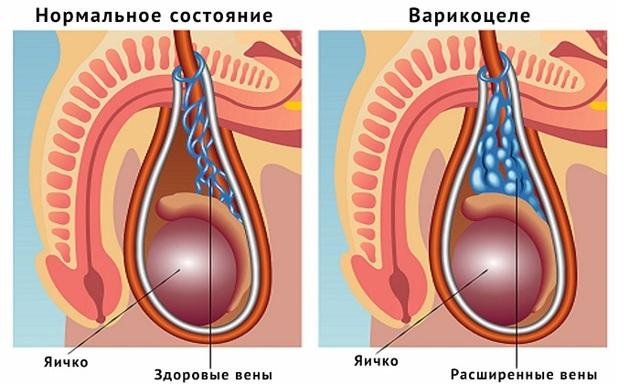 Варикоцеле у подростков (14 лет и старше): нужна ли опреация, лечение, 1, 2, 3 степень