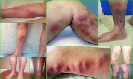 Тромбофлебит глубоких вен нижних конечностей: причины, симптомы (хронического, острого), диагностика, лечение, профилактика (питание), осложнения