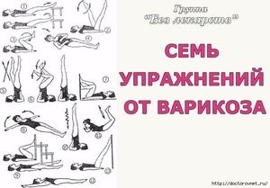 Какие упражнения можно делать при варикозе вен ног