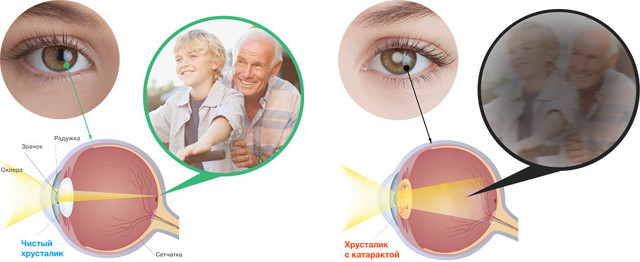 Потеря зрения при сахарном диабете как восстановить