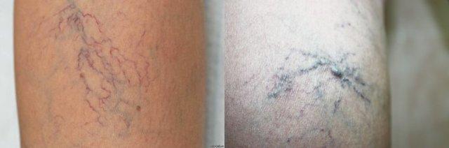 Начальная стадия варикоза на ногах: способы лечения и как распознать (симптомы, диагностика)