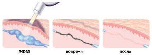 Удаление сосудистых звездочек на лице лазером: показания и противопоказания, отзывы, цены, восстановительный период, побочные эффекты
